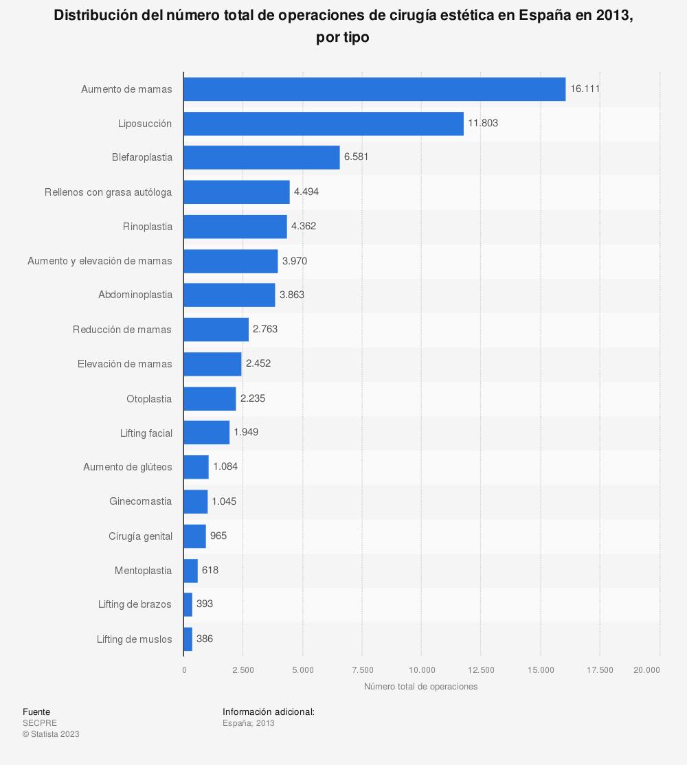 Estadística: Distribución del número total de operaciones de cirugía estética en España en 2013, por tipo | Statista